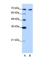 NBP1-57236 - CDKN2AIP / CARF