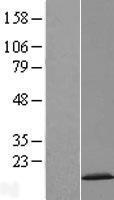 NBL1-09054 - CDKN2AIPNL Lysate