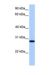 NBP1-58079 - CDKN3 / CIP2