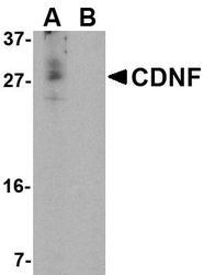 NBP1-76835 - CDNF