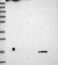 NBP1-88994 - CDNF