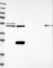 NBP1-93681 - CDR2L