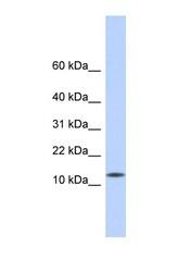 NBP1-55440 - CDRT4