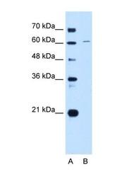 NBP1-58114 - CDT1
