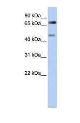 NBP1-54644 - CDT2 / DTL