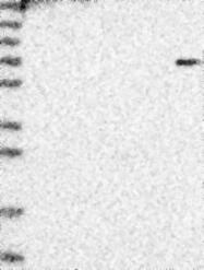 NBP1-85283 - CDT2 / DTL