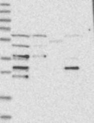 NBP1-81779 - CDV3 / H41