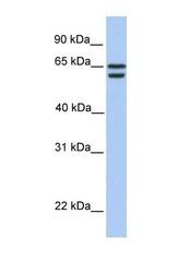 NBP1-55178 - CDYL2