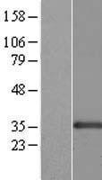 NBL1-09086 - CENPK Lysate