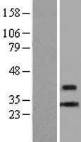 NBL1-09087 - CENPL Lysate
