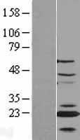 NBL1-09089 - CENPN Lysate