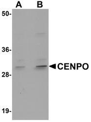 NBP1-76240 - CENP-O