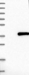 NBP1-85688 - CENP-P