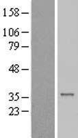 NBL1-09091 - CENPP Lysate