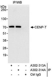 NBP1-28698 - CENP-T