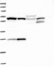 NBP1-89895 - HAUS2 / CEP27