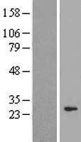 NBL1-09097 - CEP27 Lysate