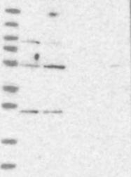 NBP1-83045 - CEP57