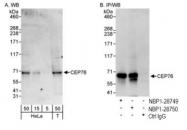 NBP1-28750 - CEP76