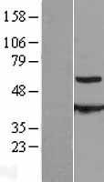 NBL1-08904 - CESK1 Lysate