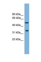 NBP1-57025 - CFDP1