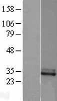 NBL1-09123 - CFHL2 Lysate