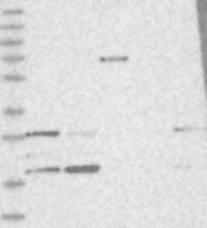 NBP1-84528 - CGGBP1