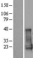 NBL1-09134 - CGGBP1 Lysate