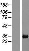 NBL1-09138 - CH25H Lysate