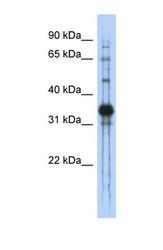 NBP1-58038 - Chondroadherin