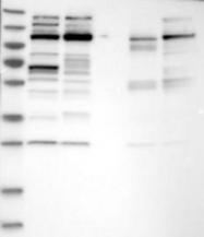 NBP1-89153 - CHD1L