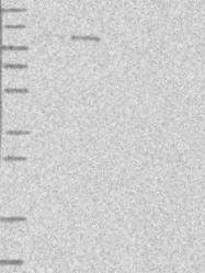NBP1-89154 - CHD1L