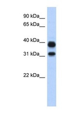 NBP1-58987 - AMCase