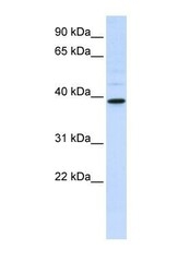NBP1-58988 - AMCase