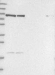 NBP1-87142 - CHML / REP2