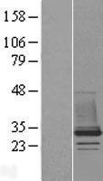 NBL1-09158 - CHMP1B Lysate