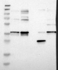 NBP1-84483 - CHMP1A