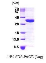 NBP1-30206 - CHMP2A / BC2