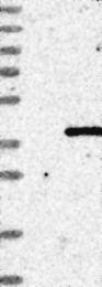 NBP1-81166 - CHMP4C