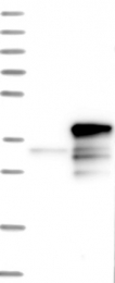 NBP1-83726 - CHMP6