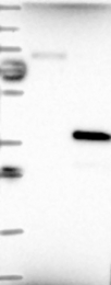 NBP1-83727 - CHMP6