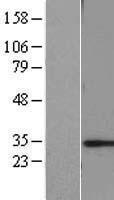 NBL1-09163 - CHMP6 Lysate