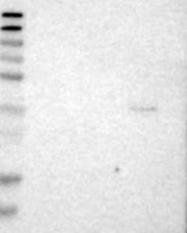 NBP1-86817 - Chondrolectin