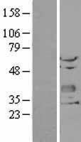 NBL1-09167 - CHODL Lysate