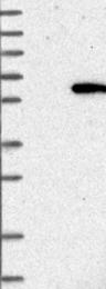 NBP1-84485 - CHRDL1 / NRLN1