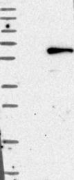 NBP1-84486 - CHRDL1 / NRLN1