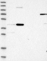 NBP1-88560 - CHRDL2 / BNF1