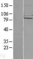 NBL1-09169 - CHSS2 Lysate