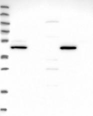 NBP1-91784 - CHST12