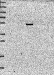 NBP1-91785 - CHST5